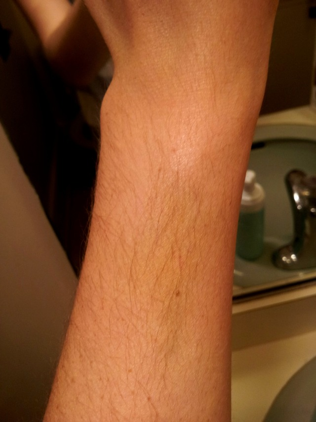 life-update-bruise