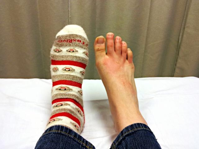 My Burnt Foot